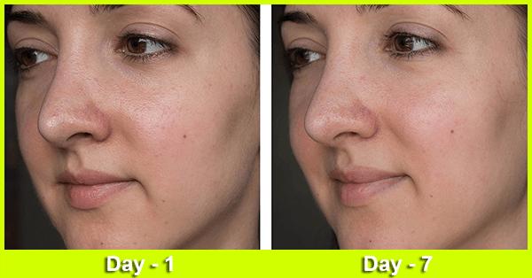 Arora shine Beauty Anti Aging Cream
