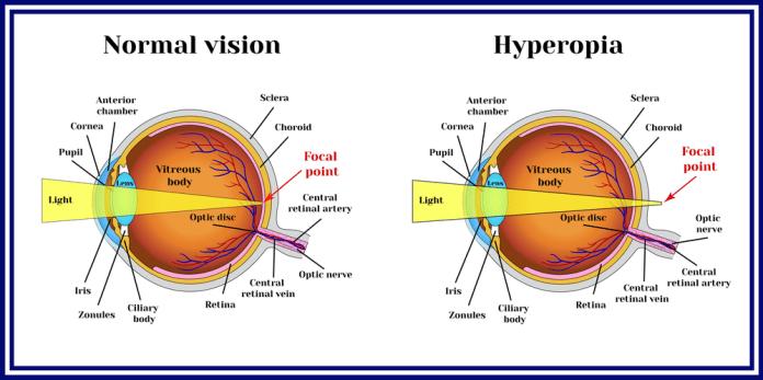 Best Eye Exercises For Farsightedness
