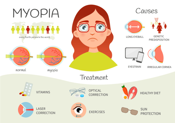 Cure Short Sightedness Naturally