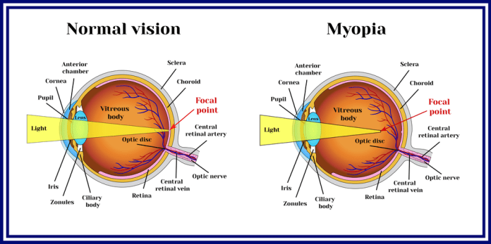 How To Cure Short Sightedness