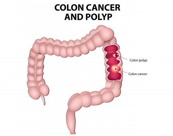colon-cancer-diagram