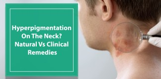 Hyperpigmentation On The Neck Natural Vs Clinical Remedies