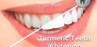 Turmeric Teeth Whitening