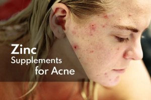 Read more about the article Zinc Supplements for Acne Treatment: Separating Facts from Fiction