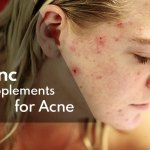 Zinc Supplements for Acne Treatment: Separating Facts from Fiction