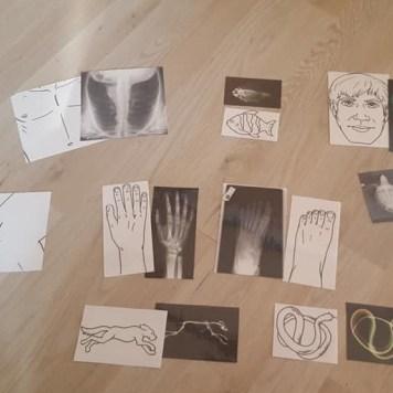 x-ray-table-lumineuse-2