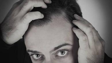 Foto de Como o uso de anabolizantes pode influenciar a queda de cabelo?