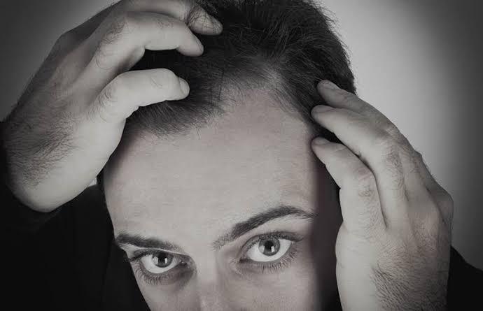 Como o uso de anabolizantes pode influenciar a queda de cabelo? 1