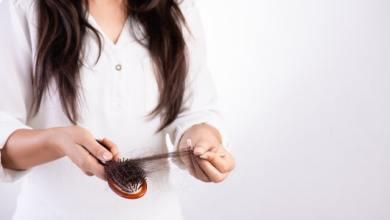 7 mitos e verdades sobre a queda de cabelos em homens e mulheres 14