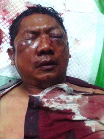 Aipda Eko Siswandi, anggota polisi dari Polsek Mulyorejo Surabaya, dihajar massa atas dugaan pemerasan yang dilakukannya bersama dua anggota polisi lainnya. (FOTO : Parlin/surabayaupdate)