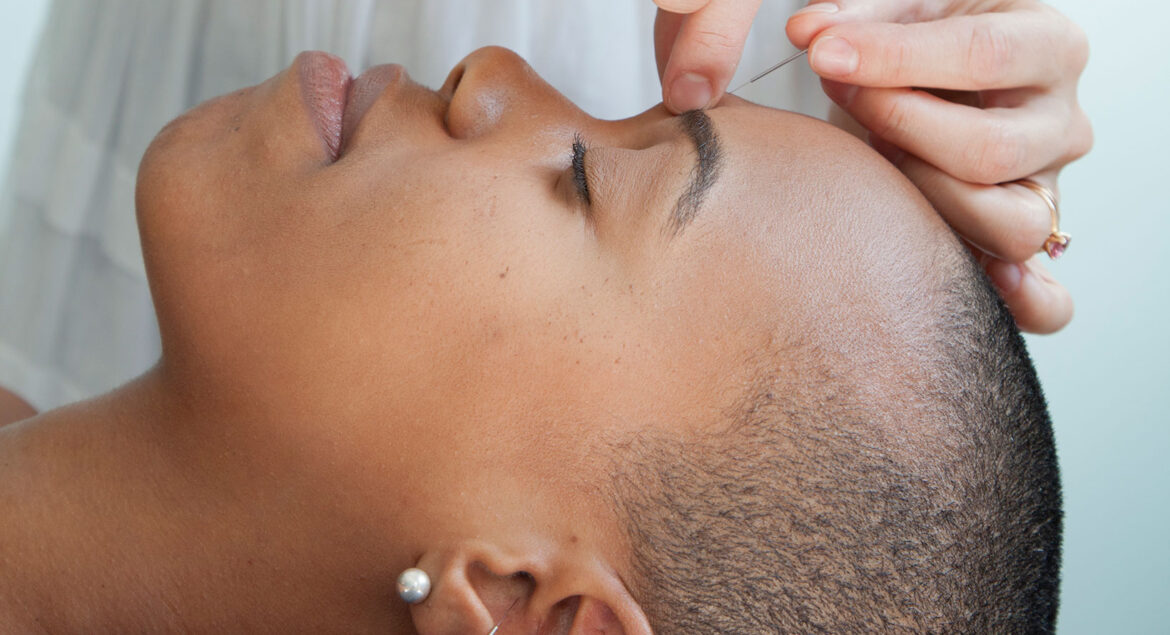 Overcoming First-Time Acupuncture Fears
