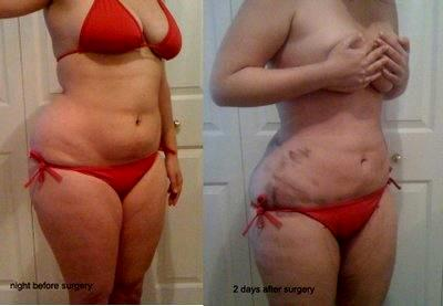 Lipo Flanks Before And 2 Days After Surgery » Liposuction ...