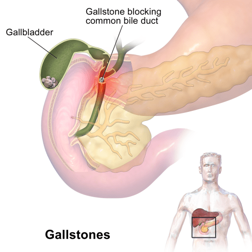 small resolution of gallstones can cause sudden pain in the upper right abdomen this pain called a gallbladder attack or biliary colic occurs when gallstones block the ducts
