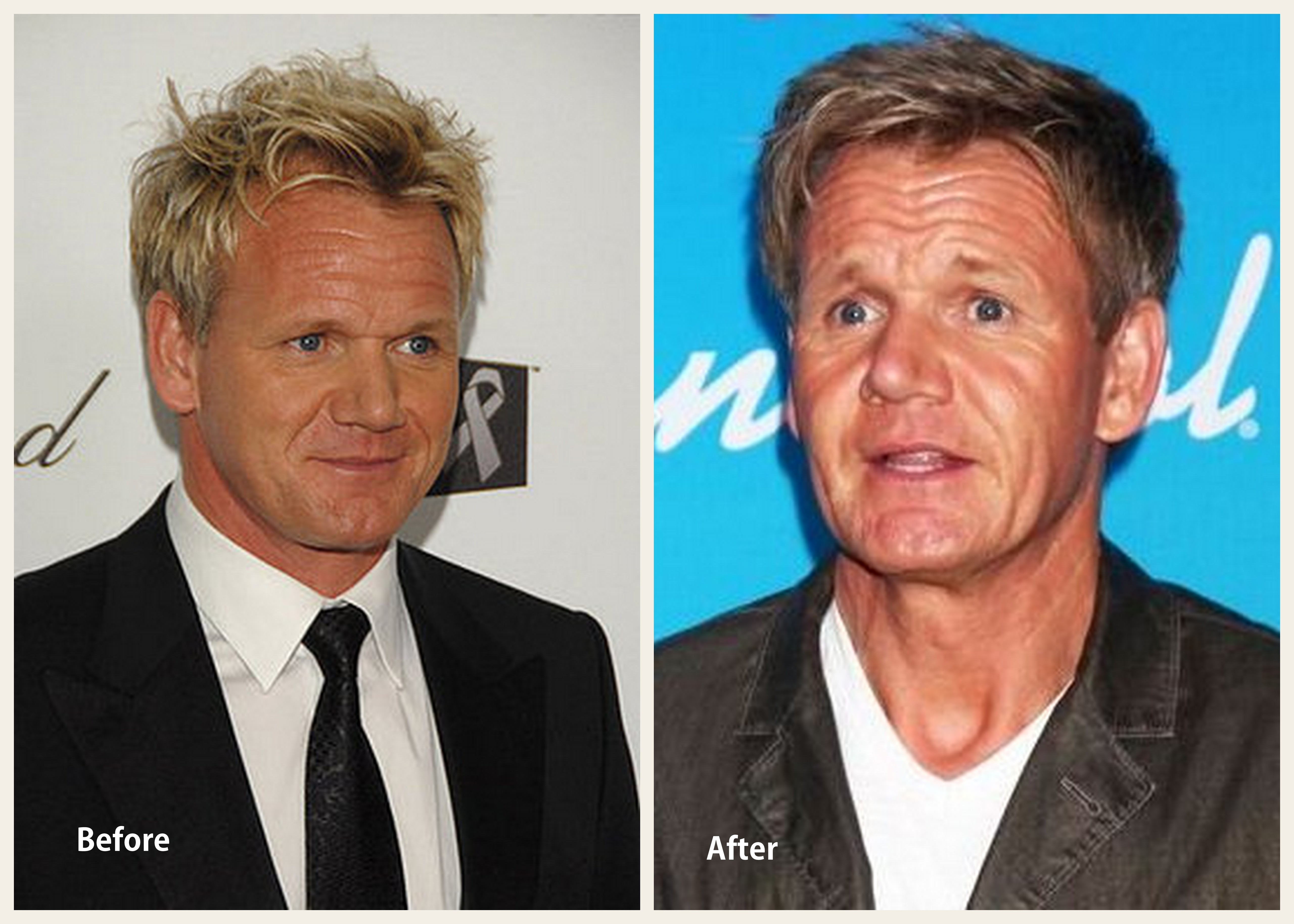 kitchen facelift before and after cafe themed decor gordon ramsay plastic surgery
