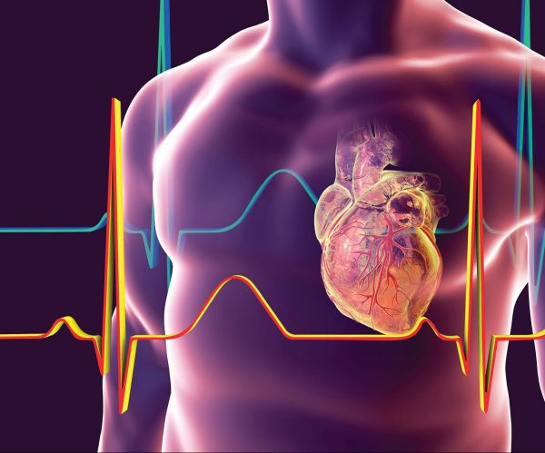 get a cardiology second opinion online