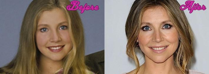 sarah chalke plastic surgery photos - sarah chalke new face