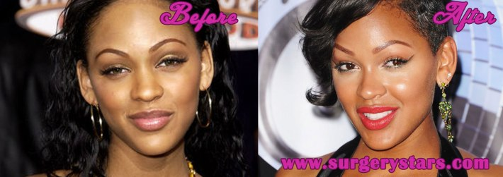 meagan good plastic surgery - before and after photos