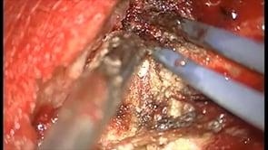 Frontal Meningioma