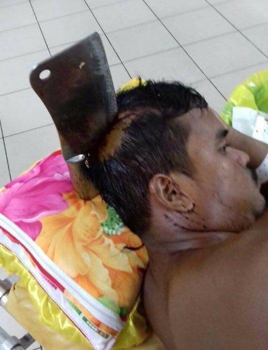 Cutelo atirado por janela durante briga de casal acaba cravado na cabeça de homem