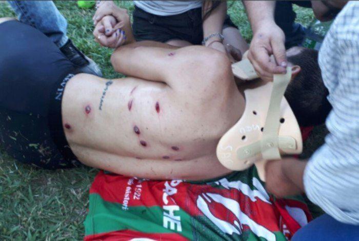Jogadores levam tiros de bala de borracha em confronto após partida de futebol
