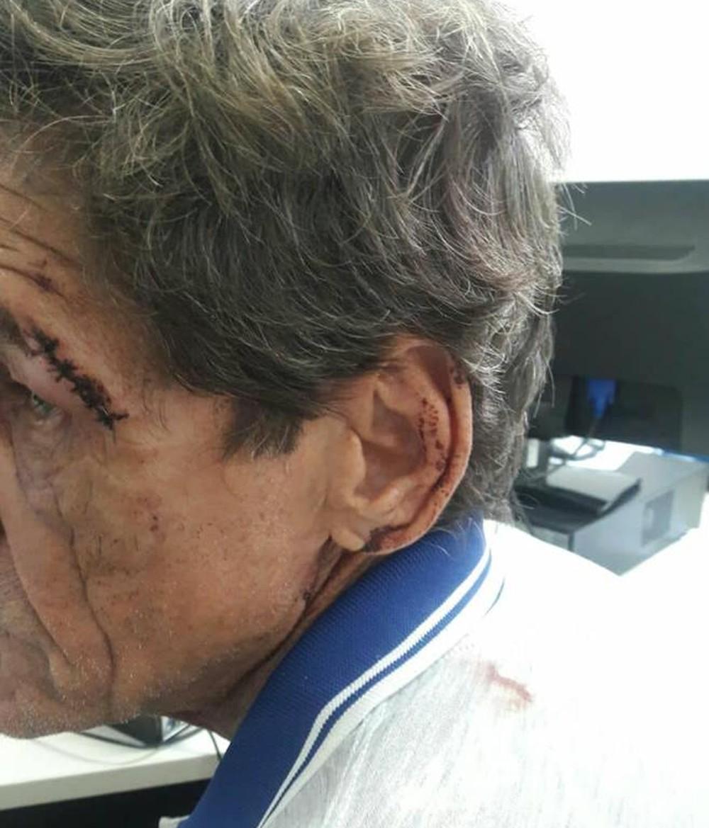 Sobrinho é suspeito de tentar matar o próprio tio com barras de ferro em Araguaína