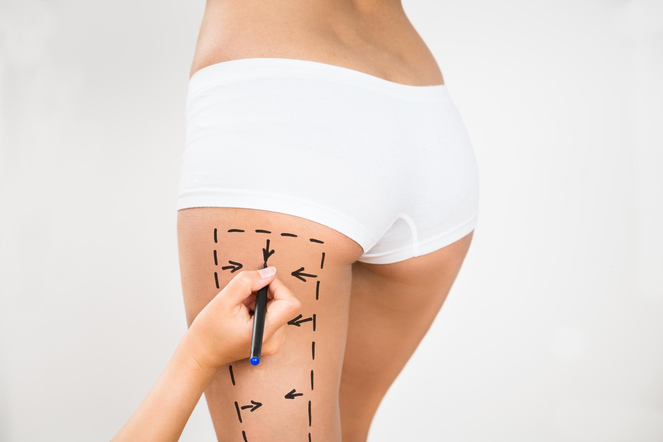 Combatendo a flacidez das coxas com a cirurgia plástica