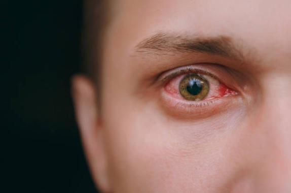 Atenção com os olhos em junho! Copa e São João necessitam de cuidados com a saúde ocular