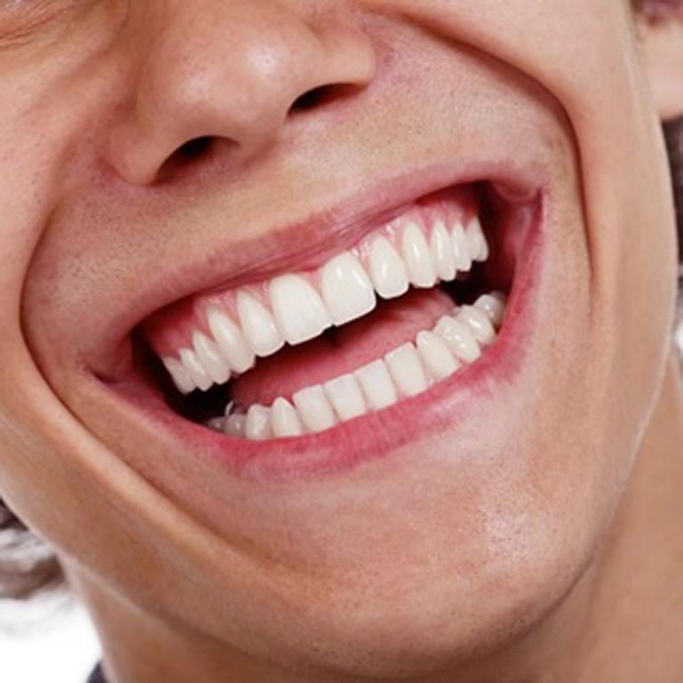 Os cuidados ao colocar lentes de contato nos dentes