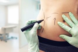 Cirurgia Plástica ideal é com pós-operatório perfeito
