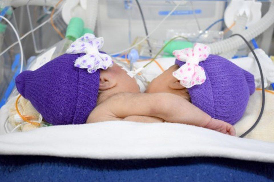 Gêmeas unidas pelo peito morrem após parada cardiorrespiratória