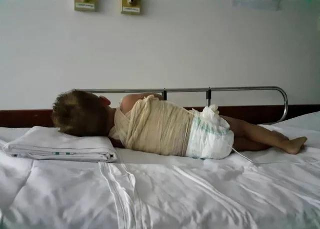 Bebê sofre queimadura com água fervente de cuscuzeira em metade do corpo em Gurupi
