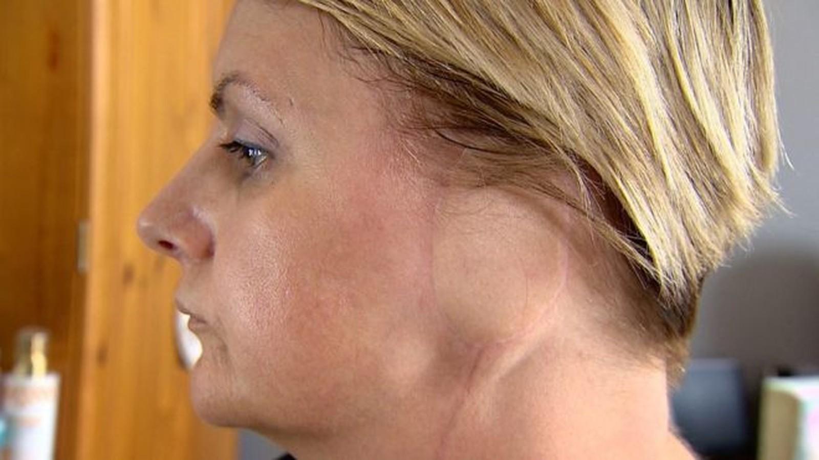 'Perdi uma orelha por causa do meu vício em bronzeamento artificial'