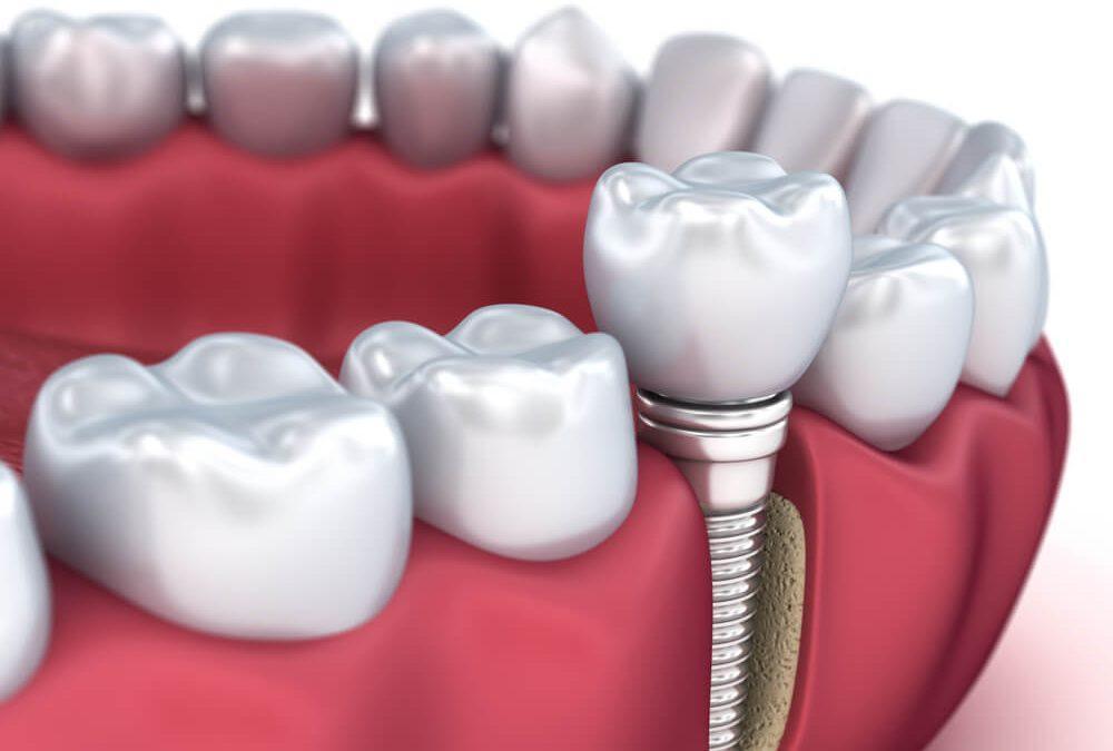 Mitos e verdades em relação aos implantes dentários
