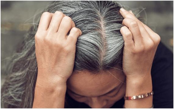 Saiba como tratar calvície feminina causada pela idade