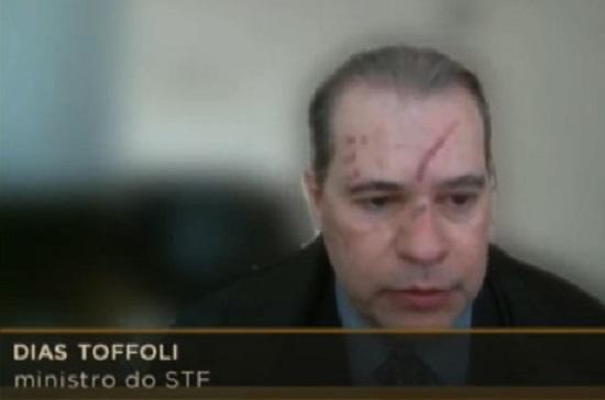 Ministro Dias Toffoli aparece com marcas no rosto em sessão do STF