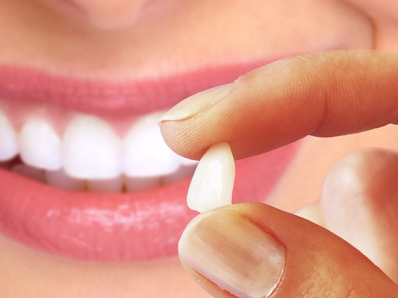 Facetas laminadas ou lentes de contato? Clínica Dentária Paraíso explica a diferença