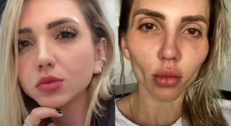 Influenciadora se arrepende de cirurgia na bochecha: 'Minha cara caiu'
