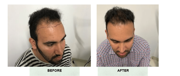 Before And After Picture Of Successful Man Hair Transplant at our Day Surgery Sydney - Surry Hills Day Hospital 1
