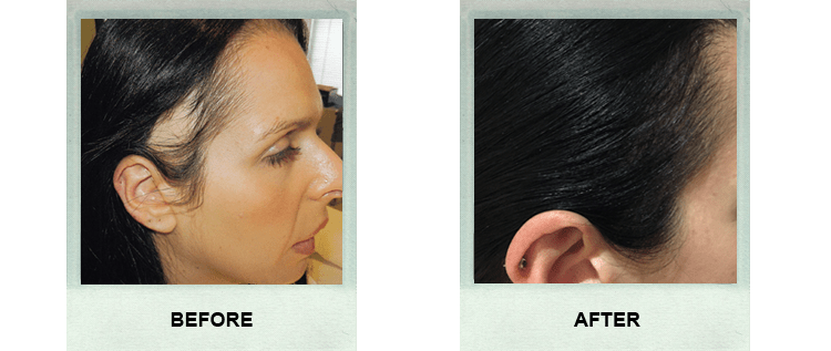 Before and After Pictures of A Women's Successful Hair Transplant at our Day Surgery Sydney - Surry Hills Day Hospital