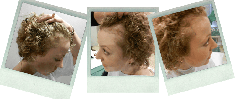 Successful Alopecia Hair Transplant our Day Surgery Sydney - Surry Hills Day Hospital