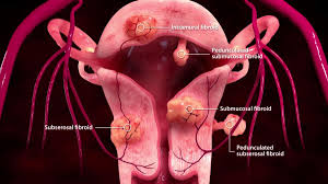 Fibroids: All The Bits And Particulars, From Types To Complications