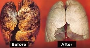 Natural ways to cleanse your lungs