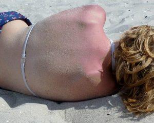 Sonnenbrand lindern