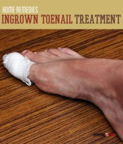 ingrown toenail treatment home