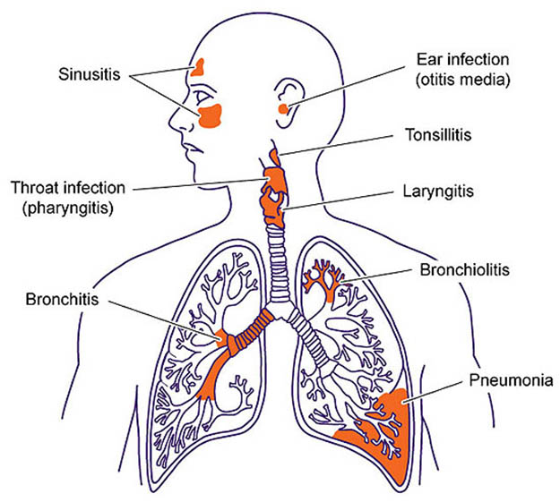 shtf-diseases-respiratory-infections