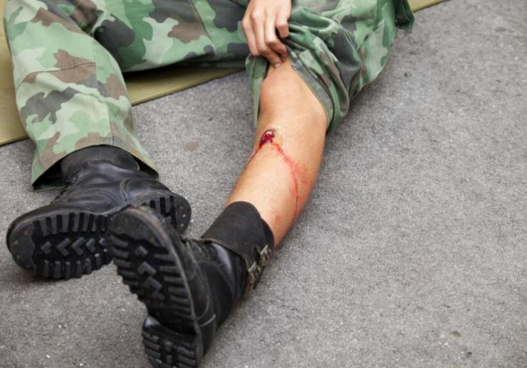 gunshot wound on soldiers leg | how to treat a gunshot wound to the leg