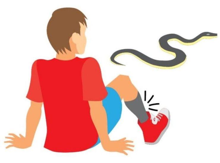 How to treat a venomous snakbite1 | snakebite