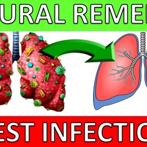 5 Natural Chest Infection Treatments (Home Remedies)