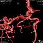 colored angiogram slide.