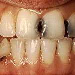 Tooth Decay! Watch Your Mouth & Get a FitLife with SusieQ FitLife